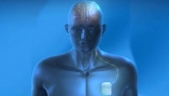 Nuevo marcapasos para tratar el Alzheimer