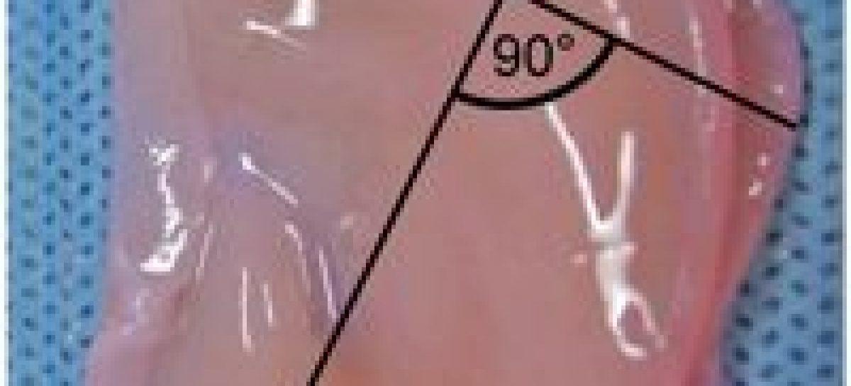 Orejas artificiales obtenidas gracias al 3D