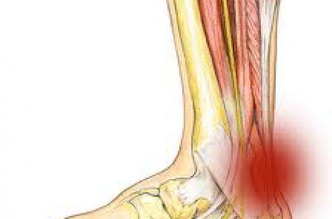 Mejoras en el tratamiento de la tendinitis