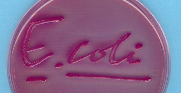 Escherichia coli-petroleo-bacteria en petroleo- e-coli