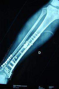 postquirurgicos-operaciones de huesos-protesis-nueva tecnica