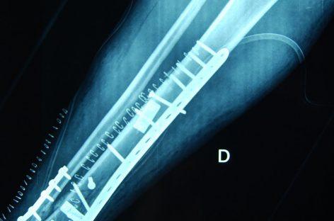 Los huesos pueden llegar a ser irrompibles