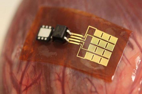 Implantes que aprovechan la energía de los órganos