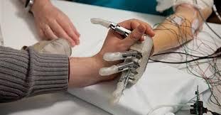 Una prótesis de mano capaz de sentir el tacto de los objetos