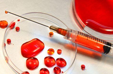 Cáncer de mama: nuevo análisis de sangre para su detección precoz