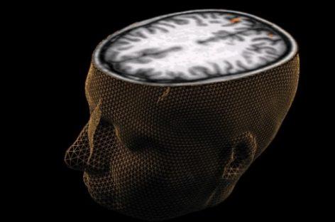 El primer cerebro biónico
