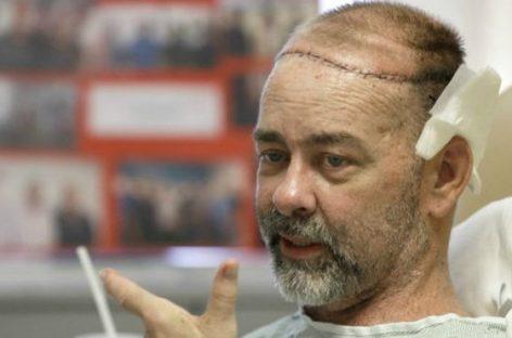 Realizan en Texas el primer trasplante simultáneo de cráneo y cuero cabelludo