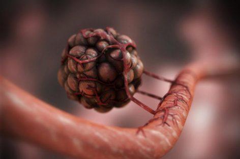 Un fármaco biológico incrementa la supervivencia en mujeres con cáncer de cuello uterino