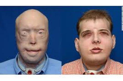 El trasplante de cara más espectacular hecho hasta ahora