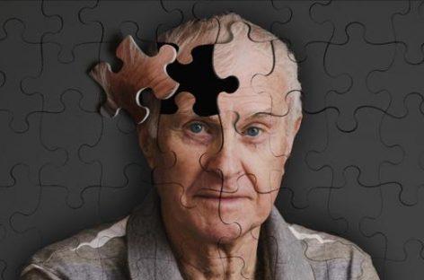 Cinasa p38, la esperanza para descubrir la cura contra el Alzheimer