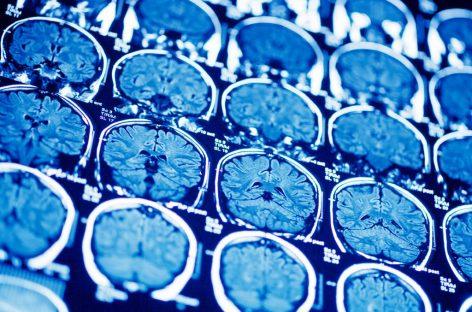 Científicos dan un paso hacia la construcción de un modelo informático del genoma del cerebro