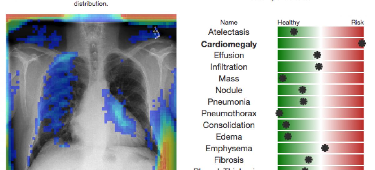 Inteligencia Artificial para diagnosticar imágenes de rayos X de tórax